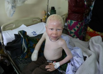 BARAKA COSMAS : On March 07, 2015, a six year old boy with albinism by the name of Baraka Cosmas Rusambo lost his right hand in a witchcraft-related attack in Kipeta Village, Kipeta Ward of Sumbawanga Rural District in Rukwa Region, western Tanzania. His mother, Ms. Prisca Shaaban, also sustained serious machete injuries to her head