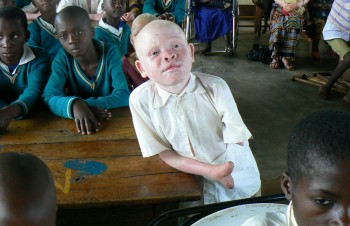 EMMANUEL FESTO: a 7 year old boy with albinism, survived a brutal machete attack on November 12, 2007. His arm was hacked off and the fingers of his remaining hand were also chopped off.